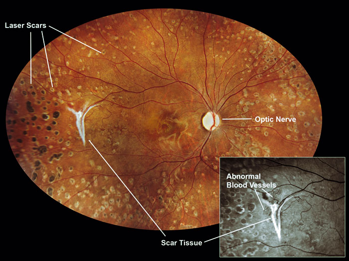 Fort Collins Optometrist-Lupus Eye Picture