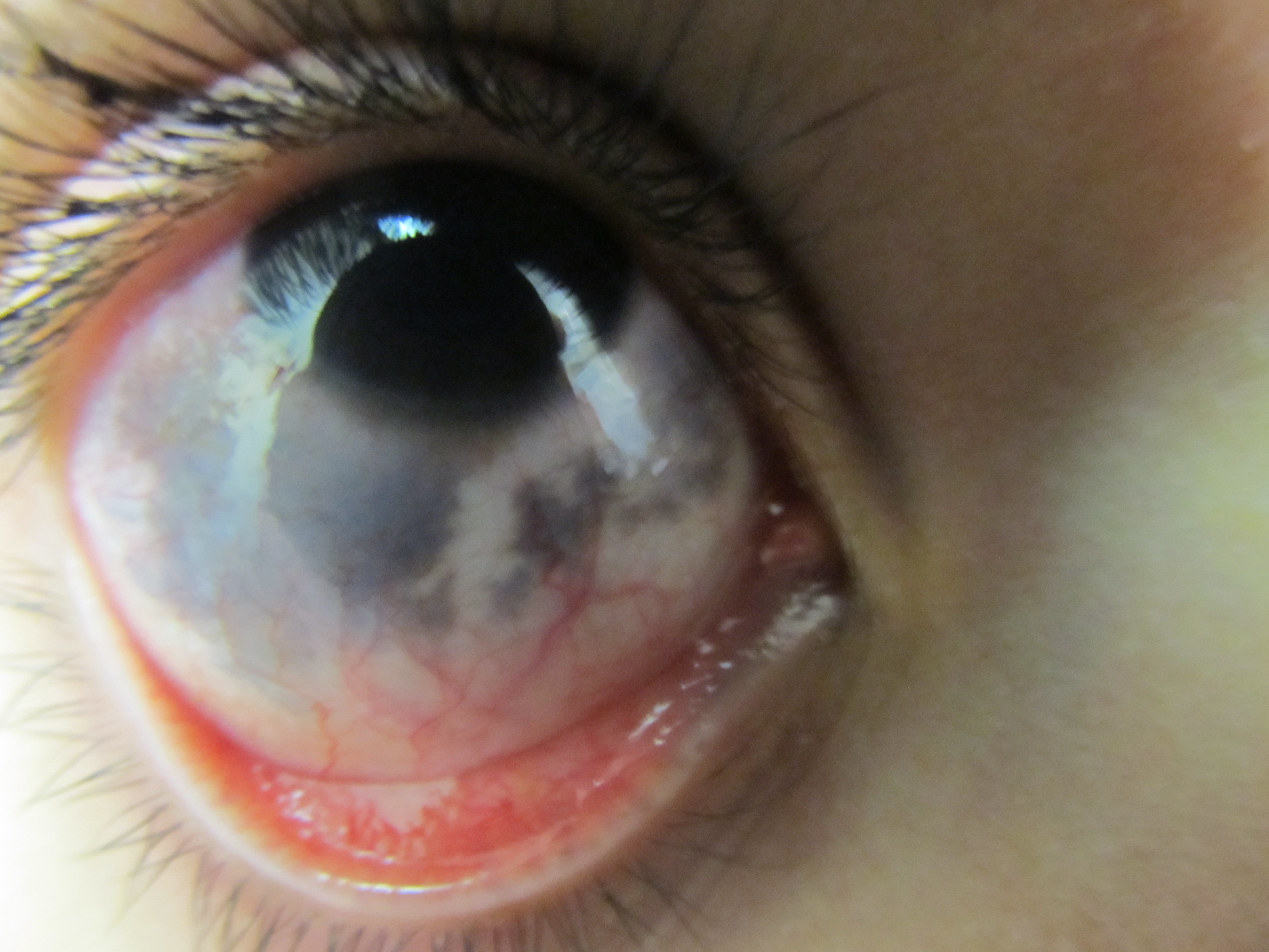 Black Spots In Eyes