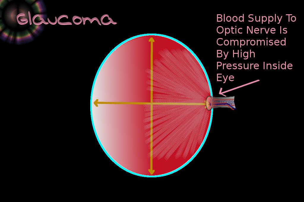 Eye With Glaucoma