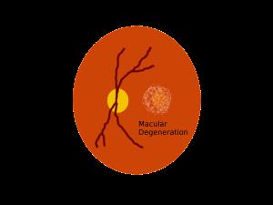 eye with macular degeneration